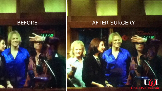 Steven Tyler, before and after finger reattachment surgery. Photo from reddit & @cabel via Twitter.